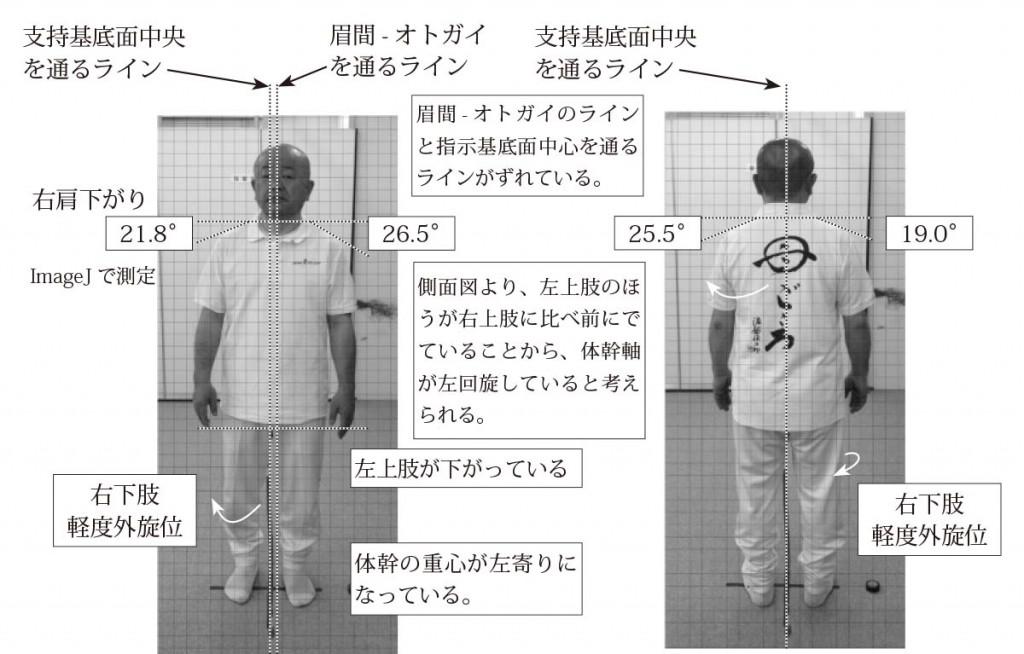 図22. 姿勢分析の一例(前面・後面)