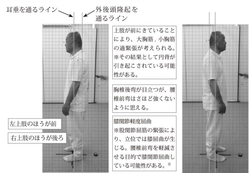 図23. 姿勢分析の一例(左側面・右側面)