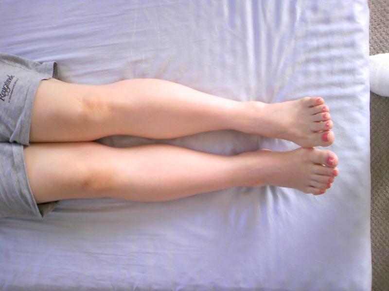 図 13. 初診時(2010/9/11撮影)