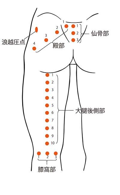図4. 仙骨部、殿部並びに大腿後側部